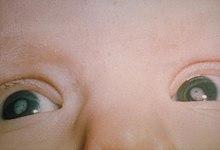 e0b664109 السّاد في كِلا العينين لدى رضيع بسبب متلازمة الحصبة الألمانيّة الخلقيّة