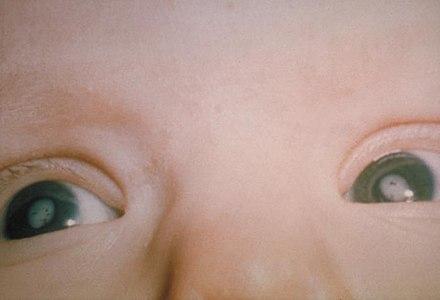 b03d5834c السّاد في كِلا العينين لدى رضيع بسبب متلازمة الحصبة الألمانيّة الخلقيّة