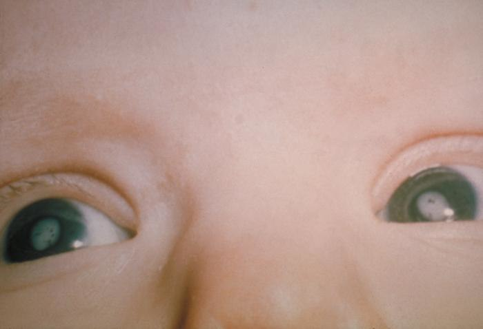 Cataracts due to Congenital Rubella Syndrome (CRS) PHIL 4284 lores