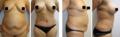 Chirurgie Reconstructive faite par les chirurgiens de TopPlasticSurgeonsMexico Abdominoplastie + Augmentation des Seins + Lifting de Seins + Augmentation du volume des fesses.png