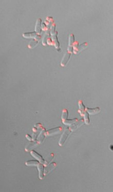 Պատկեր:Chromosome-Segregation-Impacts-on-Cell-Growth-and-Division-Site-Selection-in-Corynebacterium-pone.0055078.s005.ogv