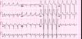 De-12leadLBTB (CardioNetworks ECGpedia).png
