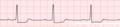 De-Rhythm 1stAVblock (CardioNetworks ECGpedia).png