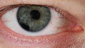 Eye injury - Eye injury by impact of small plastic body