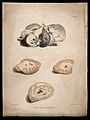Four sections of diseased brain. Colour stipple etching by C Wellcome V0009782EL.jpg