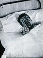 Gloucester smallpox epidemic, 1896; J.R. Evans, aged 10 Wellcome V0031453.jpg