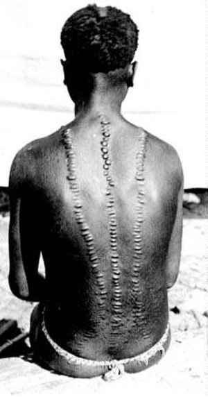 Adivasi - Scarification, a traditional symbol of Great Andamanese tribal identity (1901 photo)