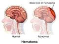 Hematoma Comparison.png