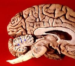 Human brain midsagittal view description.JPG