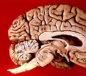 Uvula of cerebellum - Image: Human brain midsagittal view description