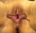 Labia minora hypertrophy with additional outgrowth of the left labia.png