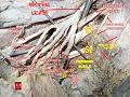 Male hypogastric artery.jpg