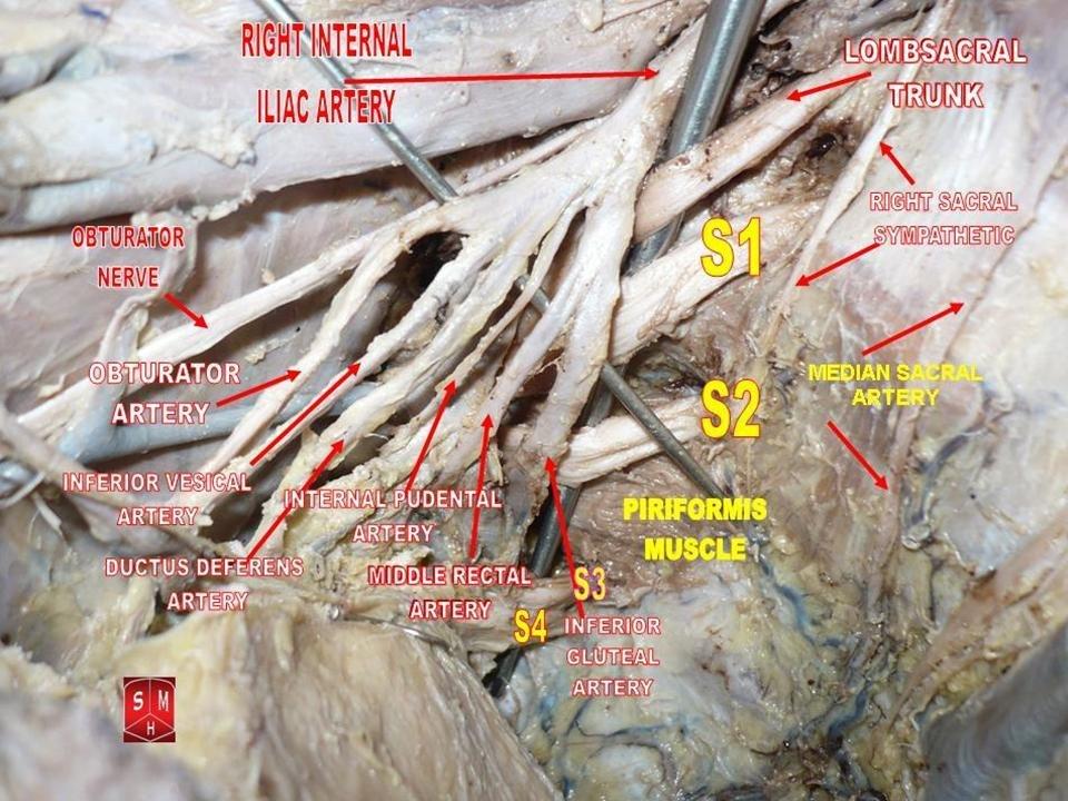 Internal Iliac Artery Howling Pixel