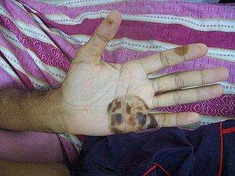 Osler's node - Osler's lesions found on the hand and fingers of a 43-year-old male with subacute bacterial endocarditis.