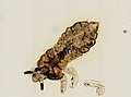 Pediculus humanus (YPM IZ 093574).jpeg