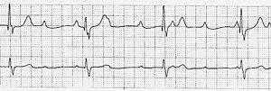 Rhythm strip showing third degree heart block (cropped).jpg