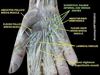 Superficial palmar arch - Image: Slide 7AAAA