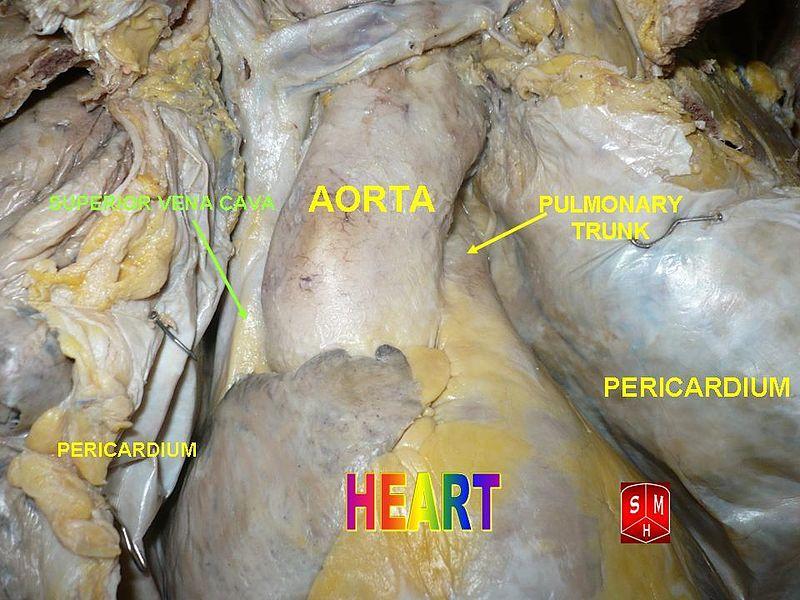File:Aorta 2.jpg