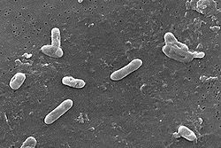 Bordetella bronchiseptica 01.jpg