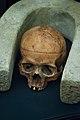 Brain surgery skull (12167361793).jpg