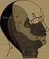 Diagnostik der inneren Krankheiten auf Grund der heutigen Untersuchungsmethoden - ein Lehrbuch für Aerzte und Studierende (1901) (14571073778).jpg