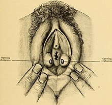 Illustration of vaginal abscesses.