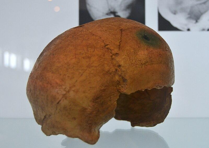 File:Fletxa de coure incrustada al parietal dret, col·lecció cientificomèdica de la Universitat de València.jpg