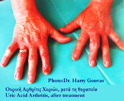 Hands post uric arthritis treatment.png