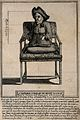 Henry Le Cocsi, a dwarf with paralysed legs, aged 34. Engrav Wellcome V0007167.jpg
