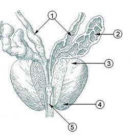 prostata noduli adenomatosis