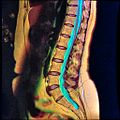 Lumbar MRI T1FSE T2frFSE STIR case2 08.jpg