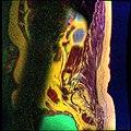 Lumbosacral MRI case 05 15.jpg