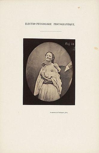 Mécanisme de la physionomie humaine -  Duchenne patient, photo from Houghton Library, Harvard University TypPh 815.62.3402 (A)