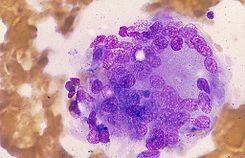 Multinucleate giant cell in subacute thyroiditis.jpg