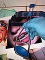 ORTHODONTIC REVERSE-PULL HEADGEAR TÜBINGER MODEL FITTING FOR FEMALE PATIENT 16 HOURS DAILY WEAR.jpg