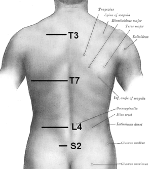 Scapular line - Surface anatomy of the back. (Inferior angle of scapula labeled at bottom center.)