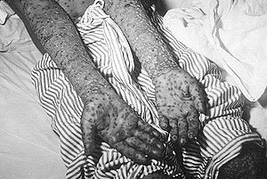 1972 Yugoslav smallpox outbreak - Patient with smallpox, Kosovo, Yugoslavia epidemic, March and April 1972.