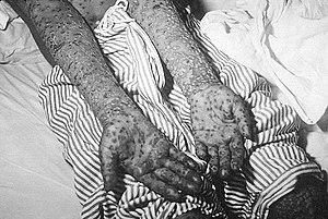 1972 Yugoslav smallpox outbreak - Patient with smallpox, Kosovo, Yugoslavia epidemic, March and April 1972.