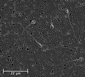 Semen - Spermatozoa, in this case human, are a primary component in normal semen, and the agents of fertilization of the female ova