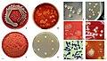 Staphylococcus aureus appearance on agar plates.jpg
