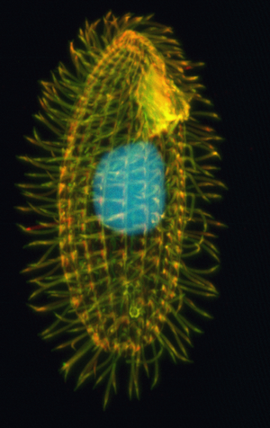 The lovely Tetrahymena thermophila. (Photo credit: Wikipedia)