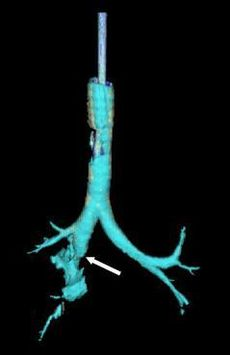 Tracheobronchial rupture 3D CT 3.jpg