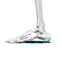 Tuberosity of left fifth metatarsal bone 01 lateral view.png