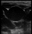 Ultrasound Scan ND 115254 1155360 cr.png
