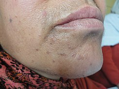 Verruca plana (flat warts) on the chin.jpg