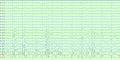 Vertex waves EEG.png