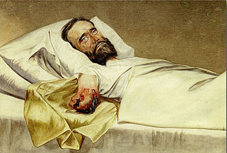 Medicine in the American Civil War - Period painting of a US Civil War soldier, wounded by a Minié ball, lies in bed with a gangrenous amputated arm.