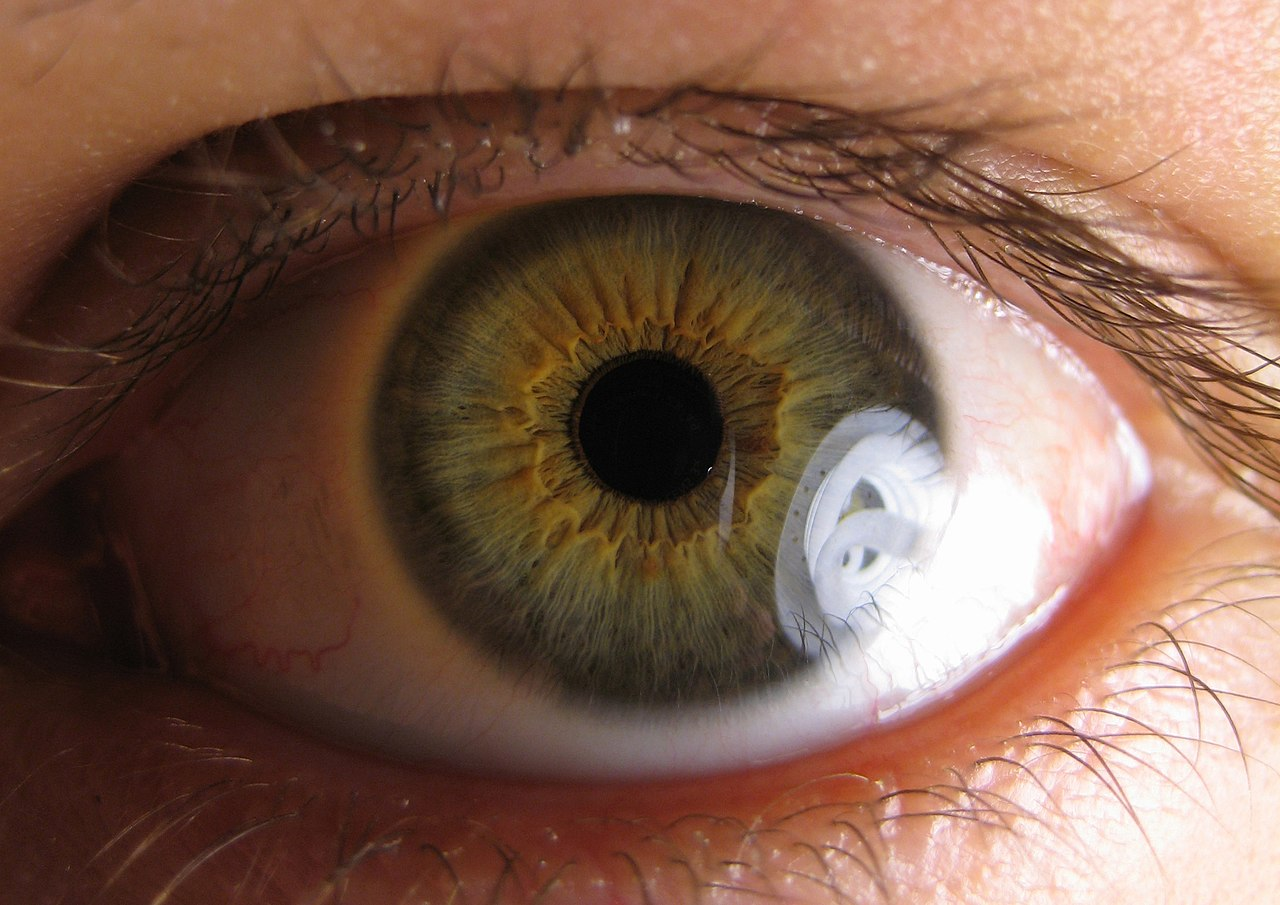 A symptom of Neurosyphilis called Argyll Robertson Pupil. Notice the spirals.