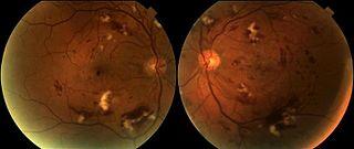 Radiation retinopathy