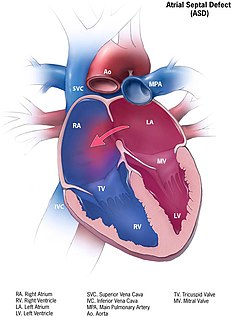 Atrial septal defect A heart defect present at birth in which blood can flow through an opening between the top chambers of the heart